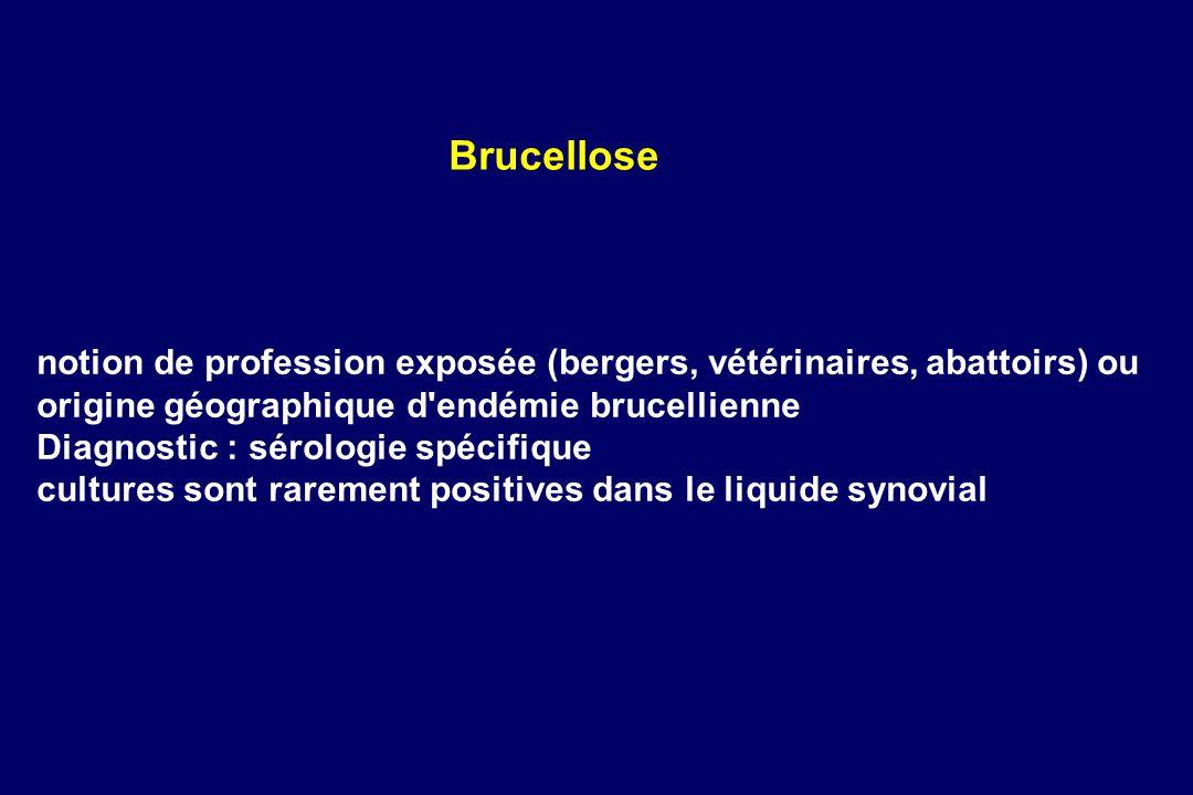 Brucellose notion de profession exposée (bergers, vétérinaires, abattoirs) ou origine géographique d endémie brucellienne.