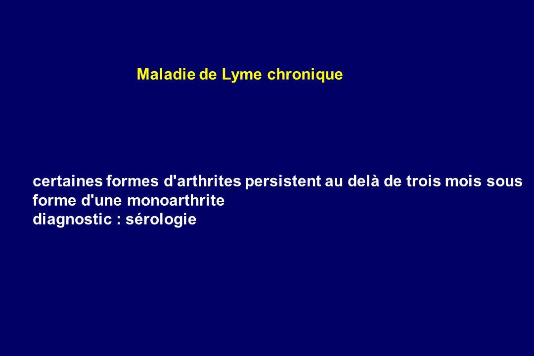 Maladie de Lyme chronique