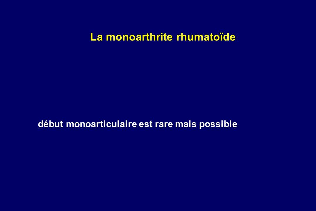 La monoarthrite rhumatoïde