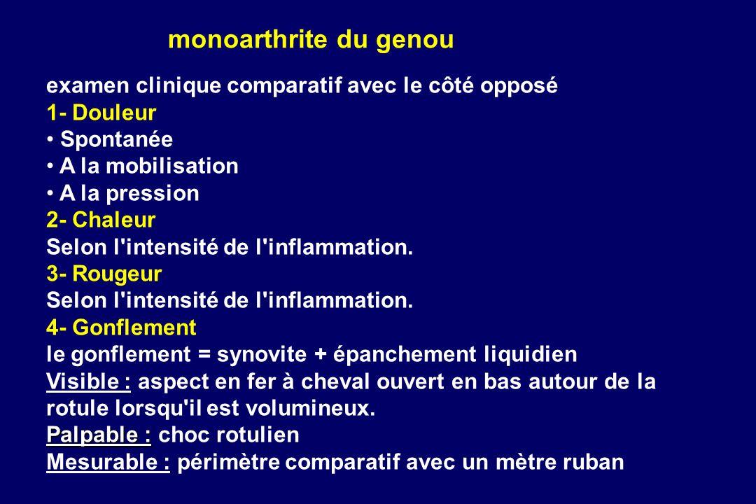 monoarthrite du genou examen clinique comparatif avec le côté opposé