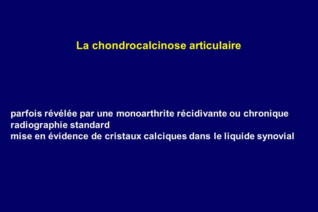 La chondrocalcinose articulaire