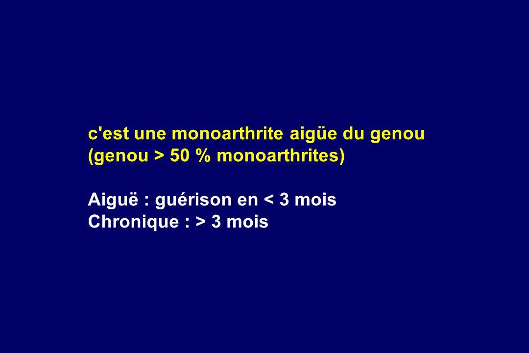 c est une monoarthrite aigüe du genou (genou > 50 % monoarthrites)