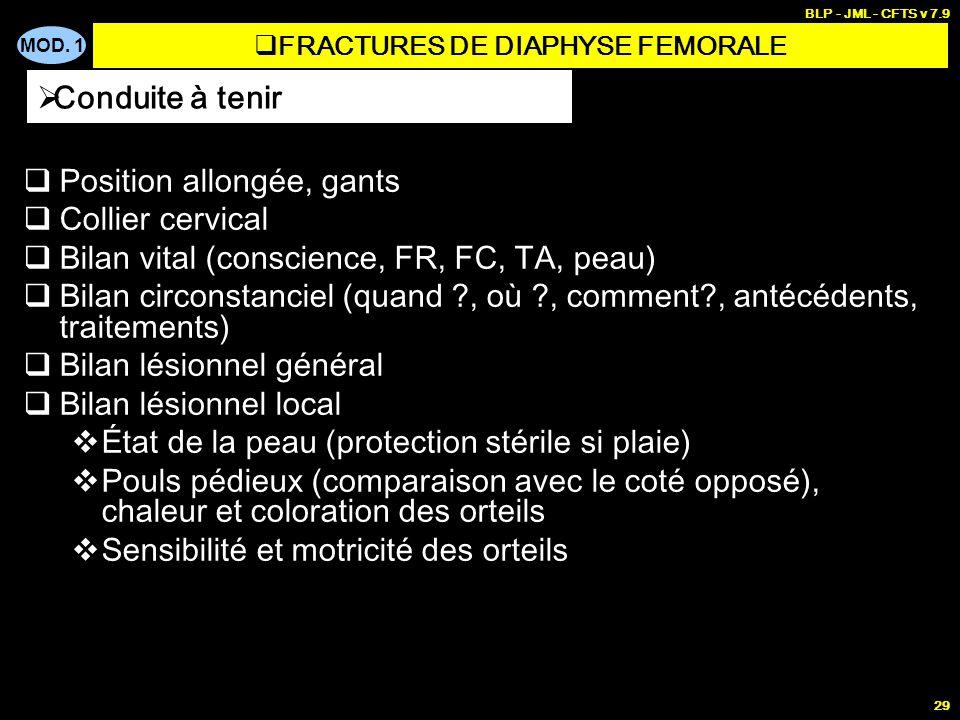 FRACTURES DE DIAPHYSE FEMORALE