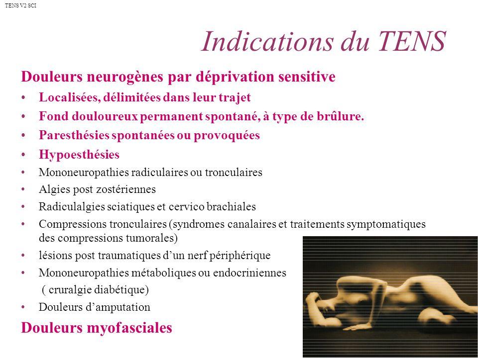 Indications du TENS Douleurs neurogènes par déprivation sensitive