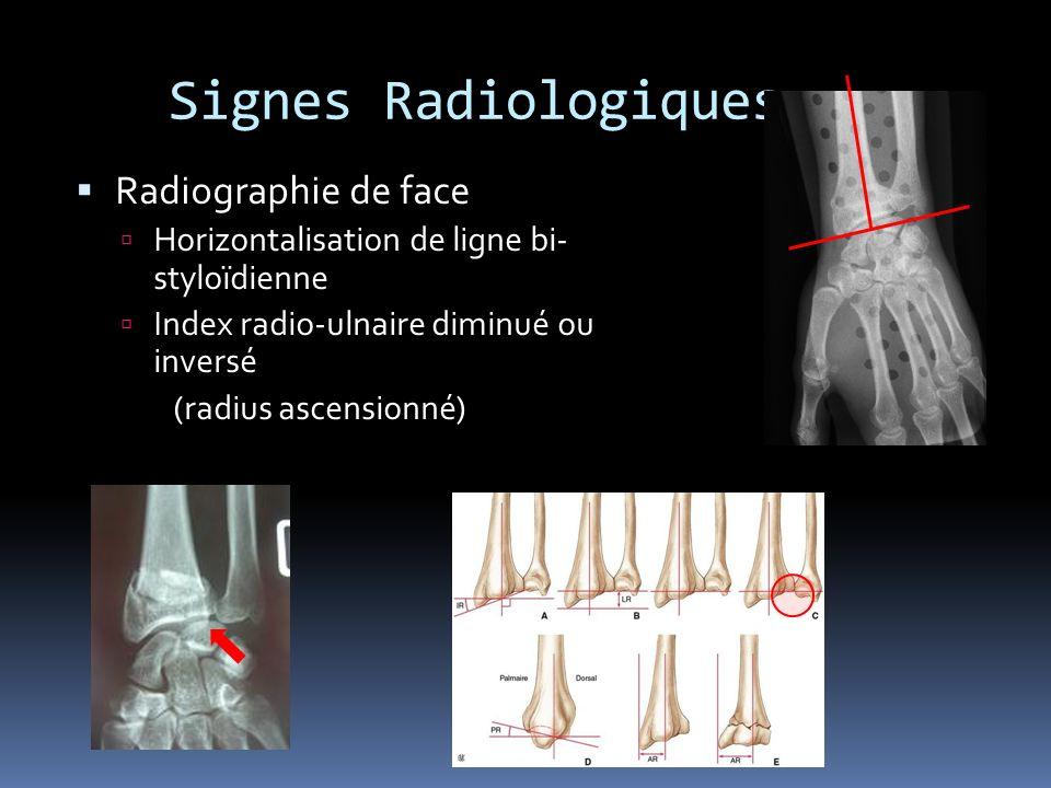 Signes Radiologiques Radiographie de face
