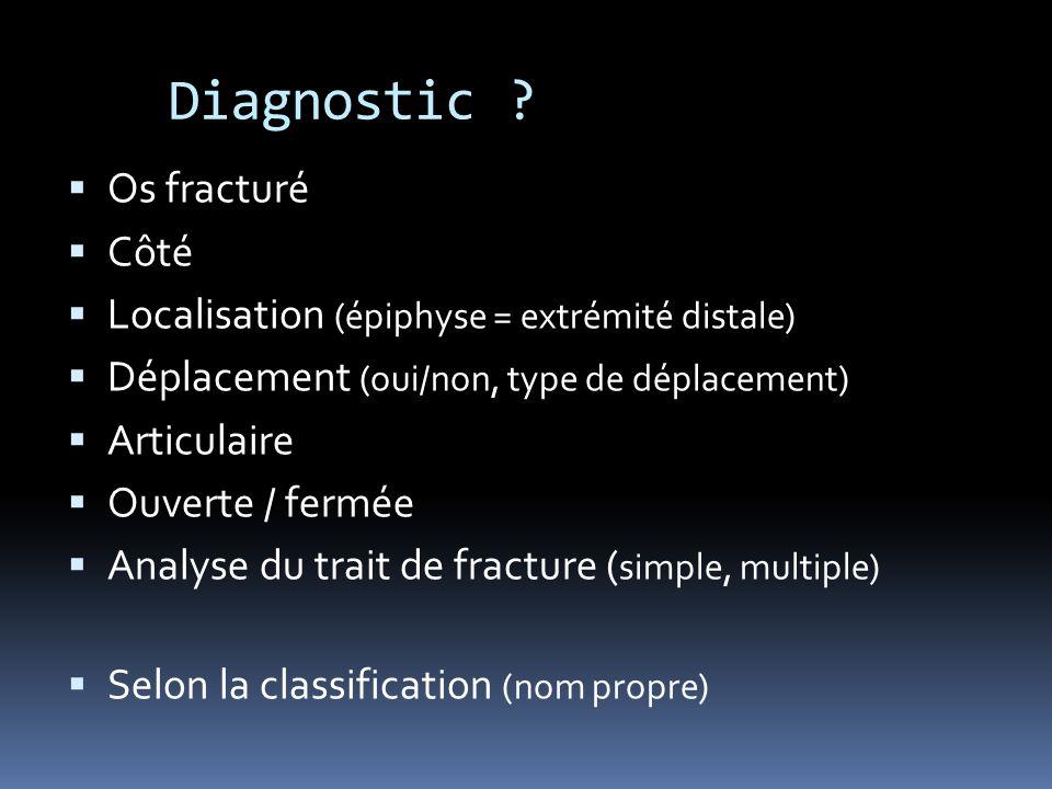 Diagnostic Os fracturé Côté