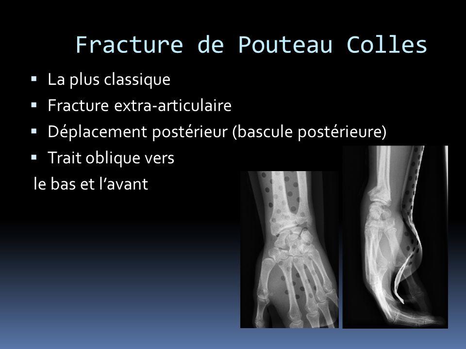 Fracture de Pouteau Colles