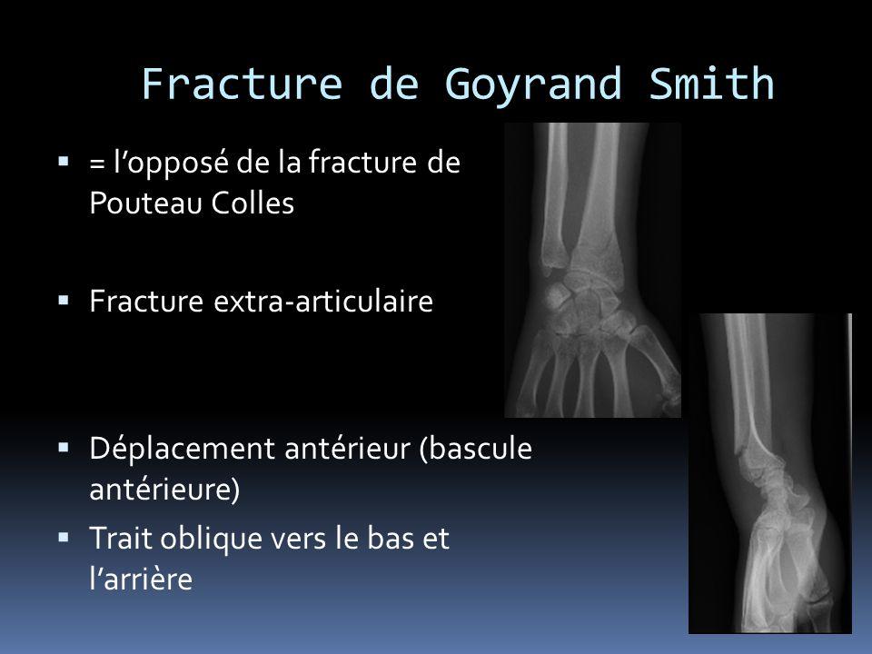Fracture de Goyrand Smith