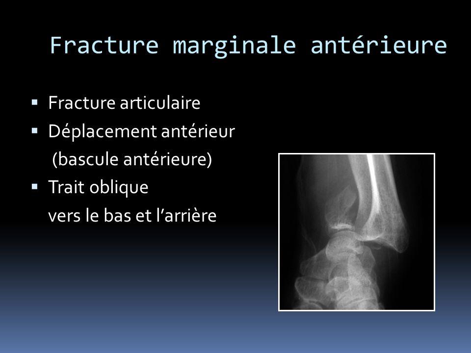 Fracture marginale antérieure
