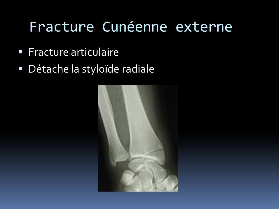 Fracture Cunéenne externe