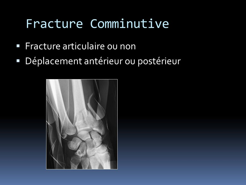 Fracture Comminutive Fracture articulaire ou non