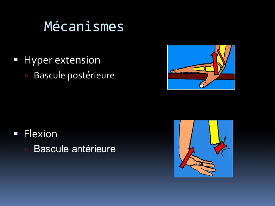 Mécanismes Hyper extension Flexion Bascule postérieure