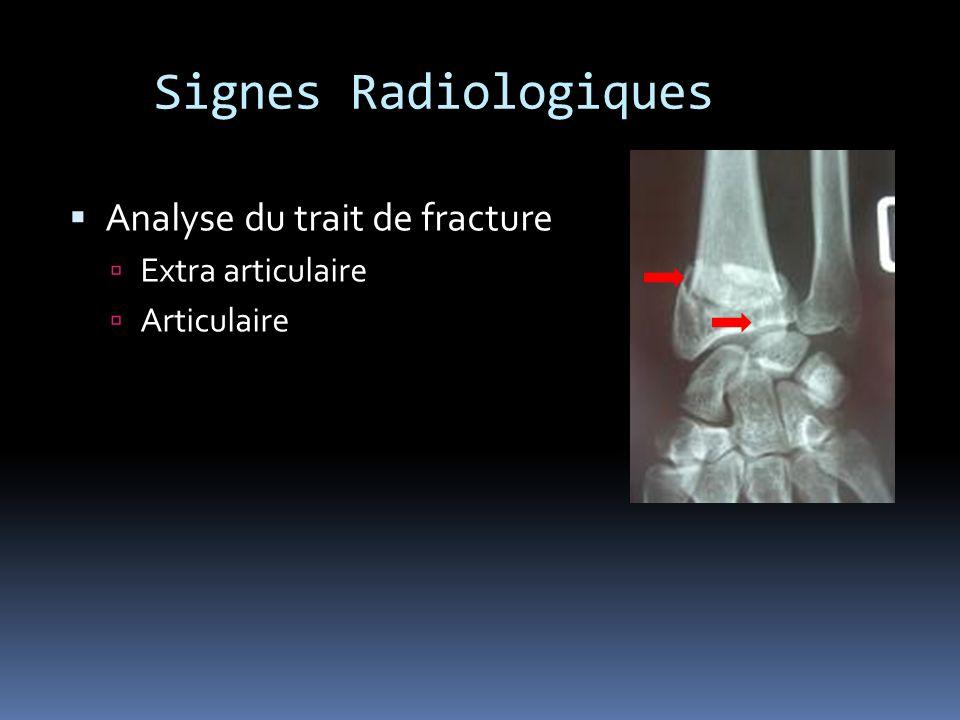 Signes Radiologiques Analyse du trait de fracture Extra articulaire