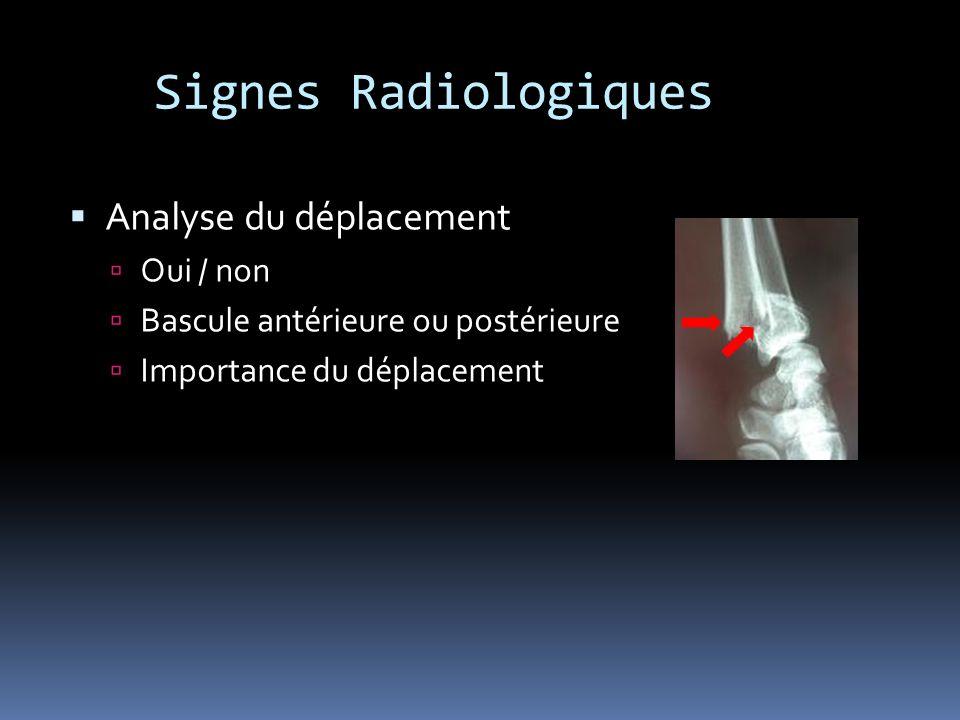 Signes Radiologiques Analyse du déplacement Oui / non