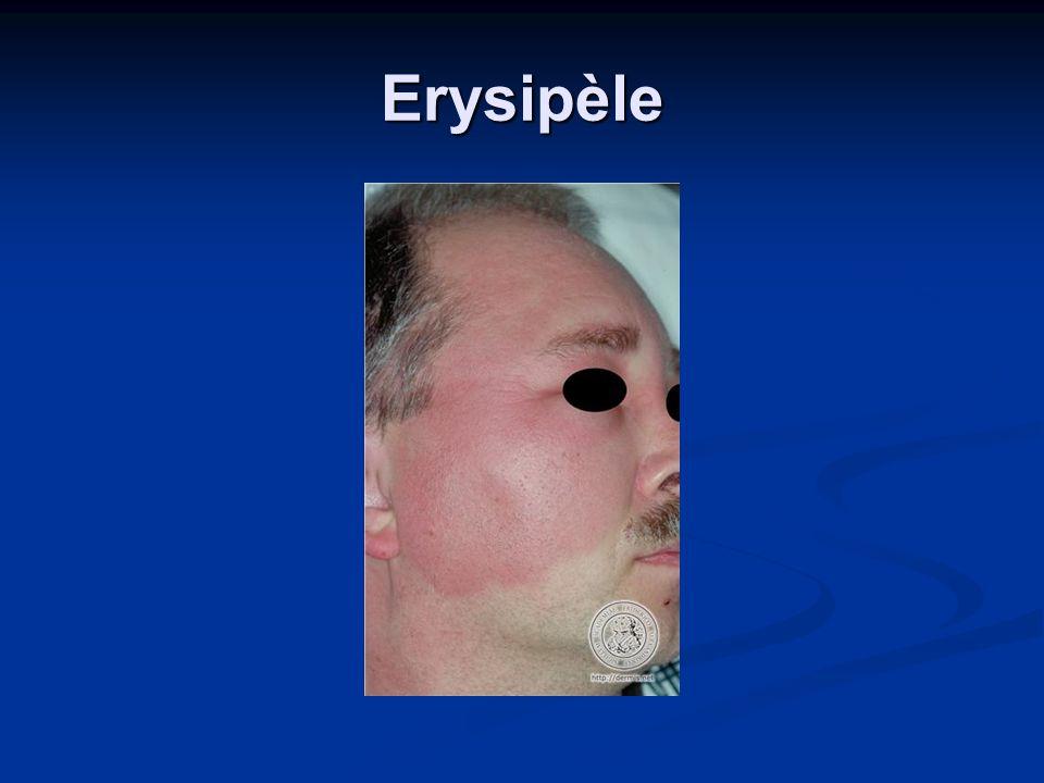 Erysipèle