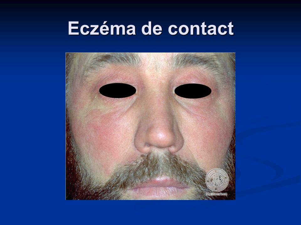 Eczéma de contact