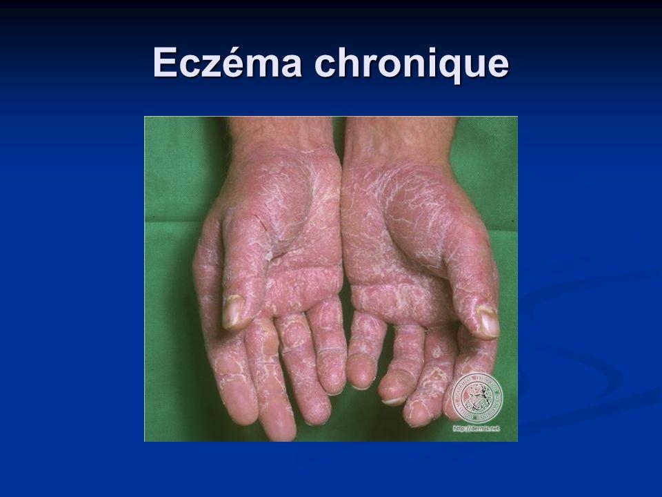 Eczéma chronique