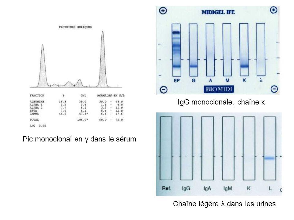 IgG monoclonale, chaîne κ