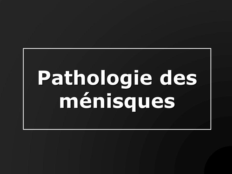 Pathologie des ménisques