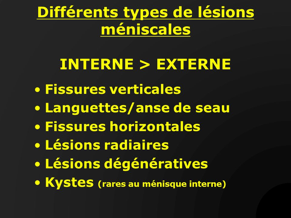 Différents types de lésions méniscales INTERNE > EXTERNE