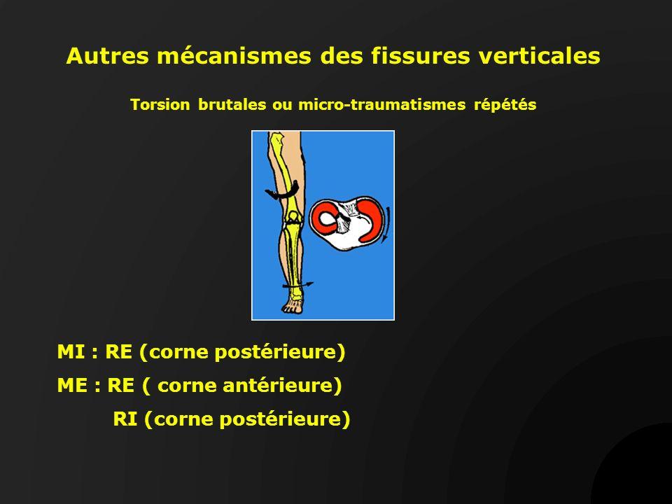 Autres mécanismes des fissures verticales Torsion brutales ou micro-traumatismes répétés