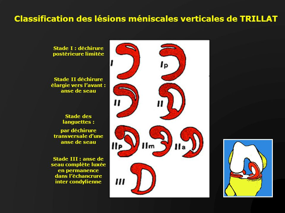 Classification des lésions méniscales verticales de TRILLAT