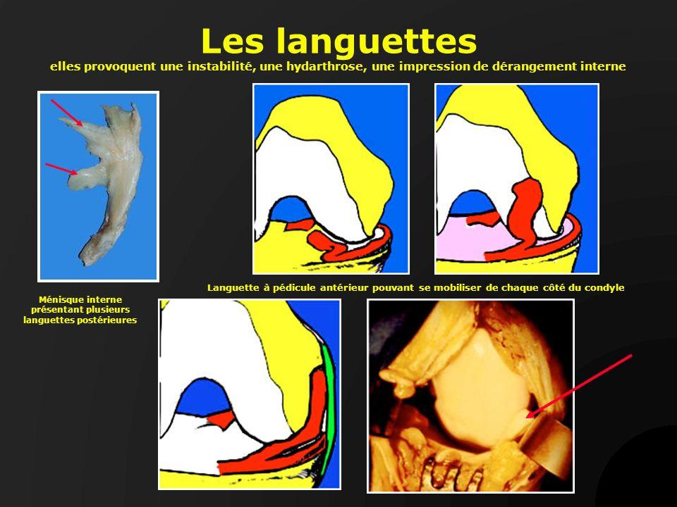 Ménisque interne présentant plusieurs languettes postérieures