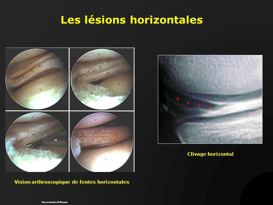 Les lésions horizontales Vision arthroscopique de fentes horizontales