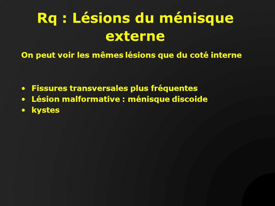 Rq : Lésions du ménisque externe