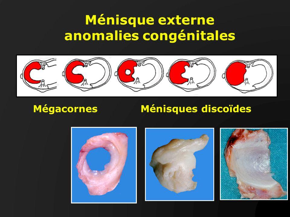 Ménisque externe anomalies congénitales