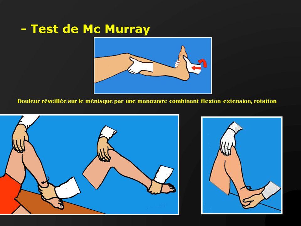 - Test de Mc Murray Douleur réveillée sur le ménisque par une manœuvre combinant flexion-extension, rotation.