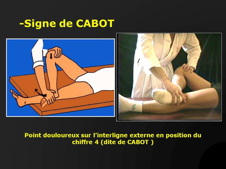 -Signe de CABOT Point douloureux sur l'interligne externe en position du chiffre 4 (dite de CABOT )