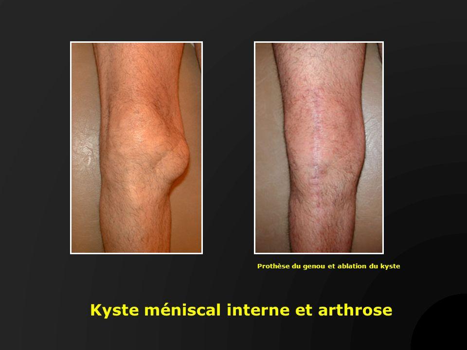 Kyste méniscal interne et arthrose