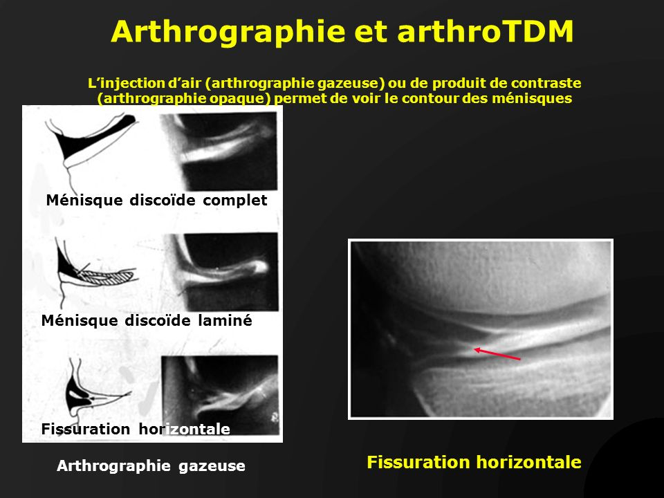 Arthrographie et arthroTDM