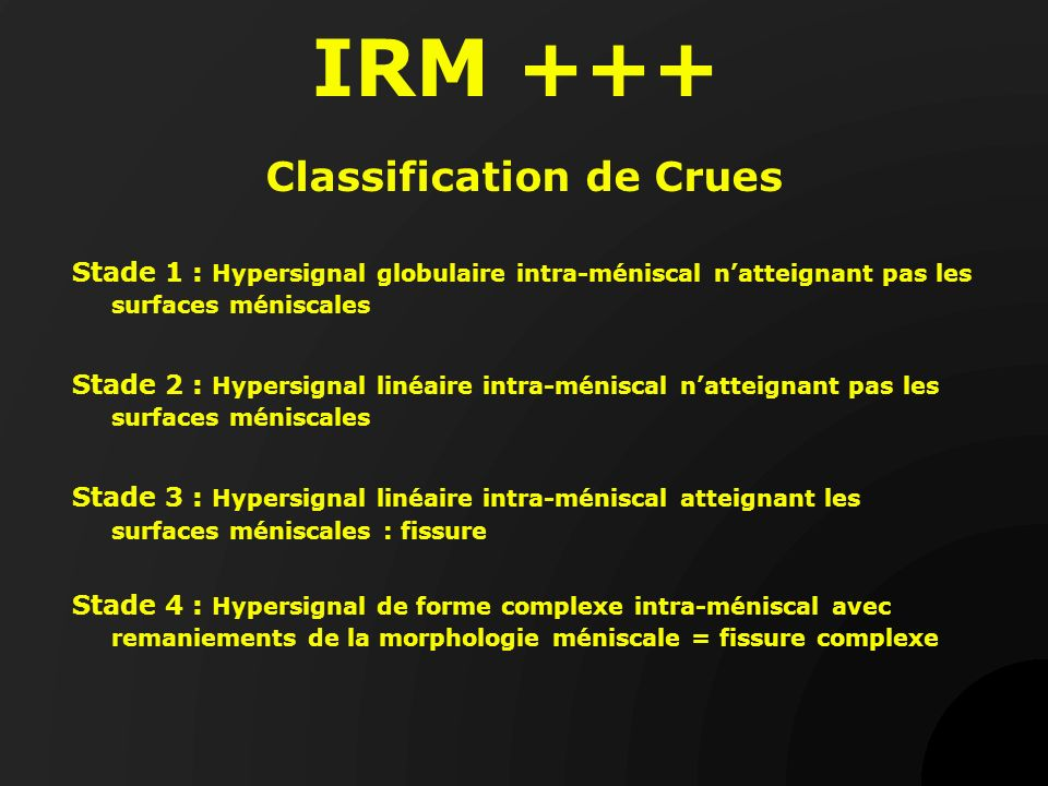 Classification de Crues