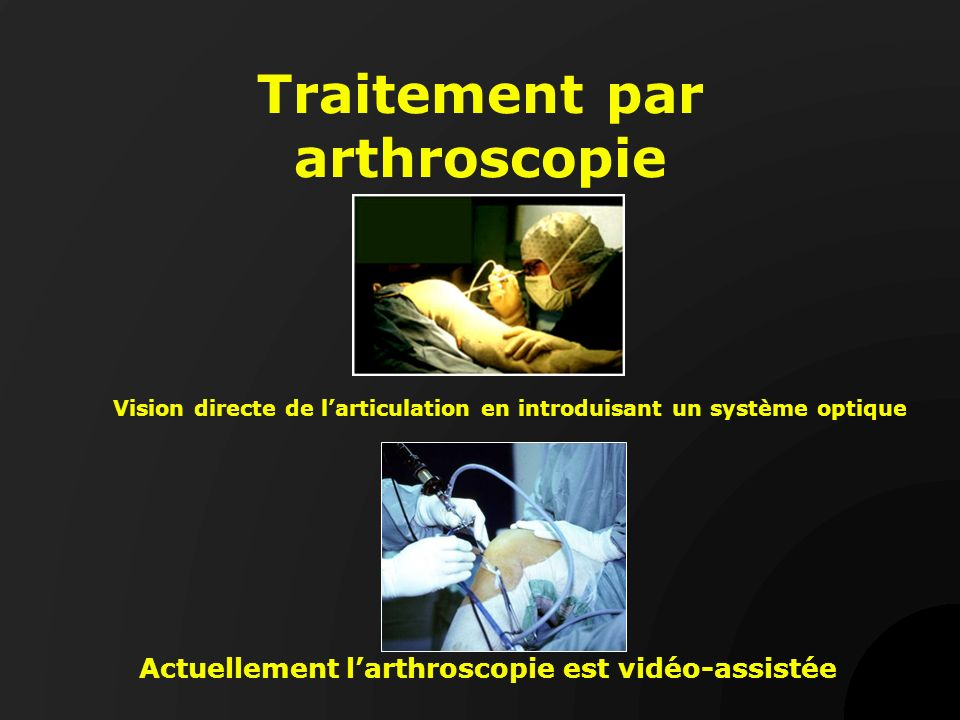 Traitement par arthroscopie