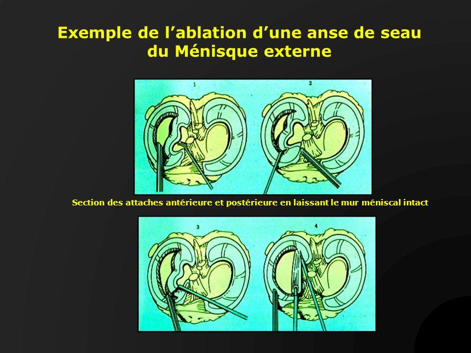 Exemple de l'ablation d'une anse de seau du Ménisque externe
