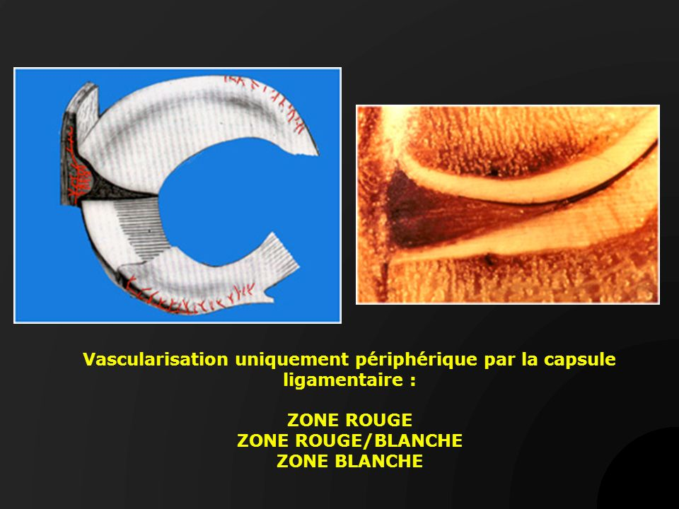 Vascularisation uniquement périphérique par la capsule ligamentaire : ZONE ROUGE ZONE ROUGE/BLANCHE ZONE BLANCHE