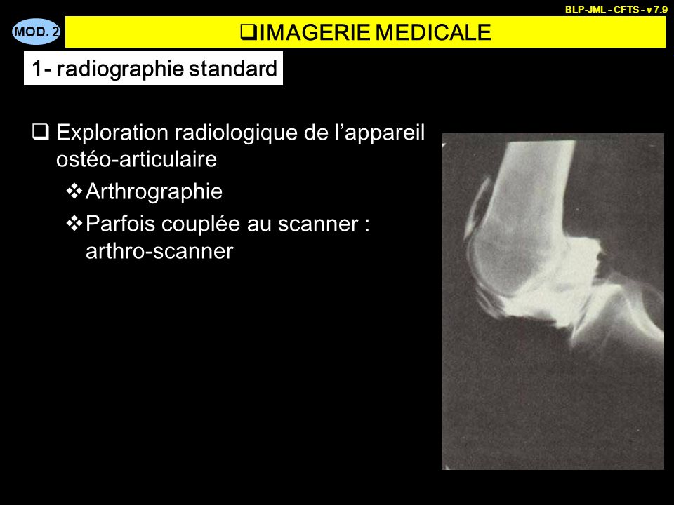 1- radiographie standard