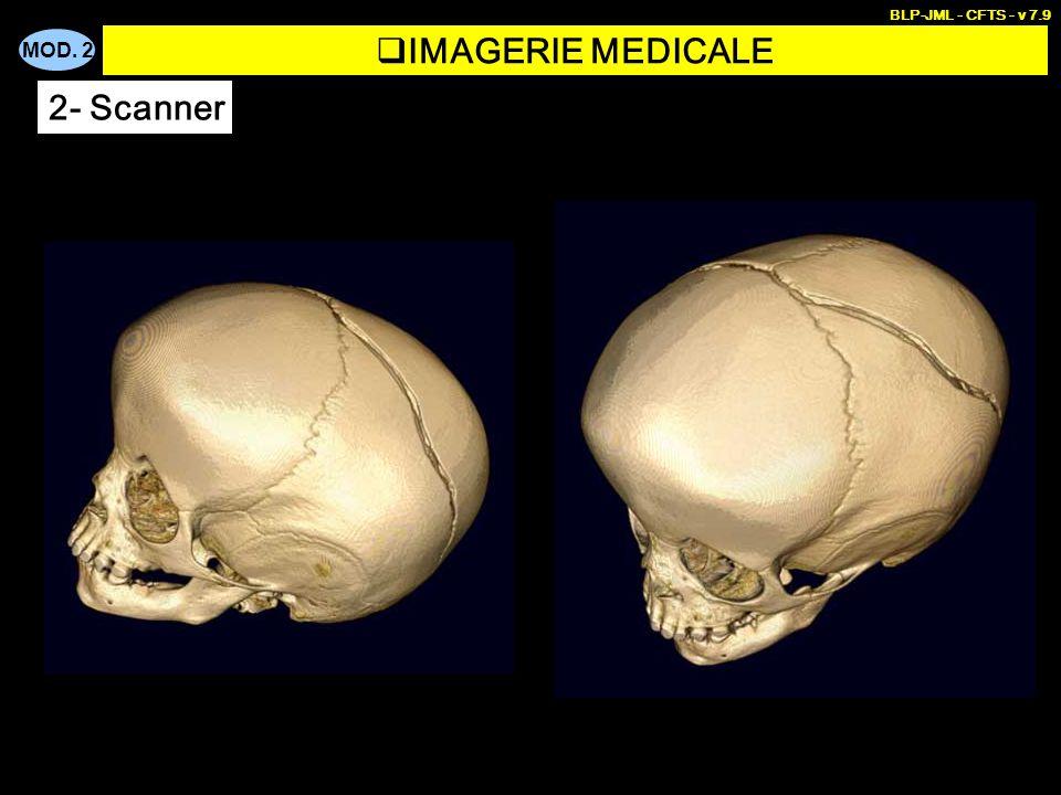 BLP-JML - CFTS - v 7.9 IMAGERIE MEDICALE 2- Scanner