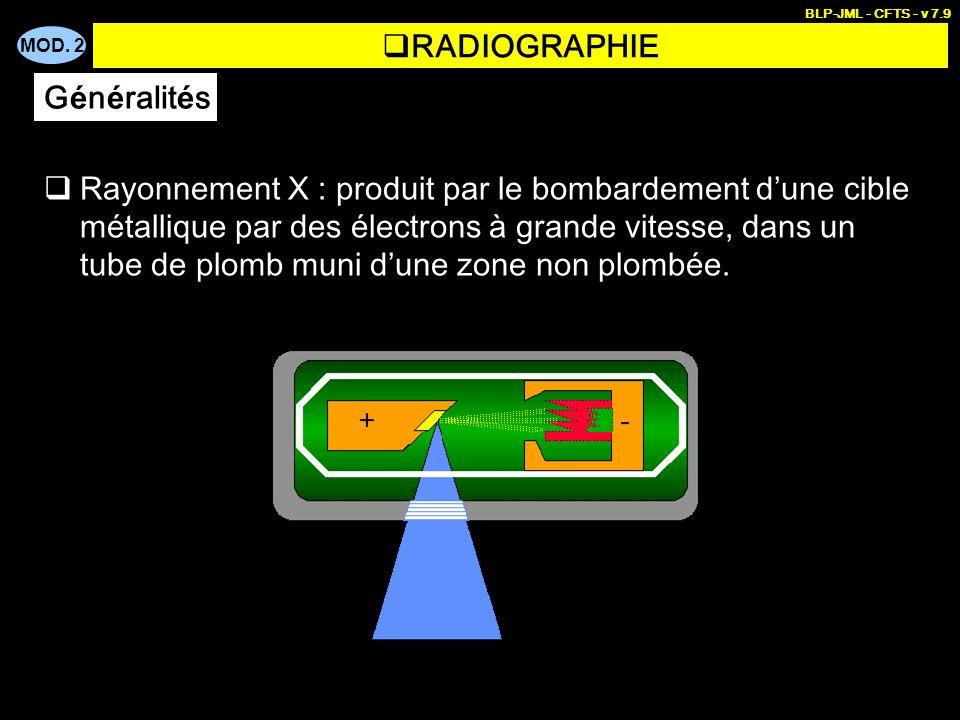 RADIOGRAPHIE Généralités