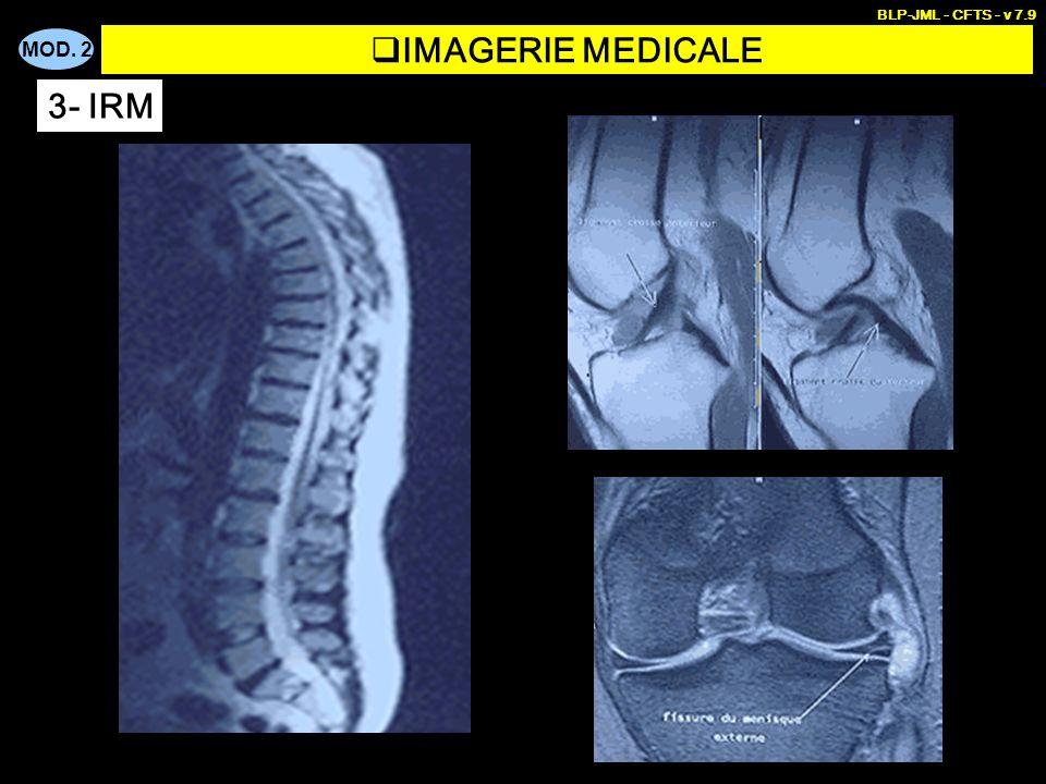 BLP-JML - CFTS - v 7.9 IMAGERIE MEDICALE 3- IRM