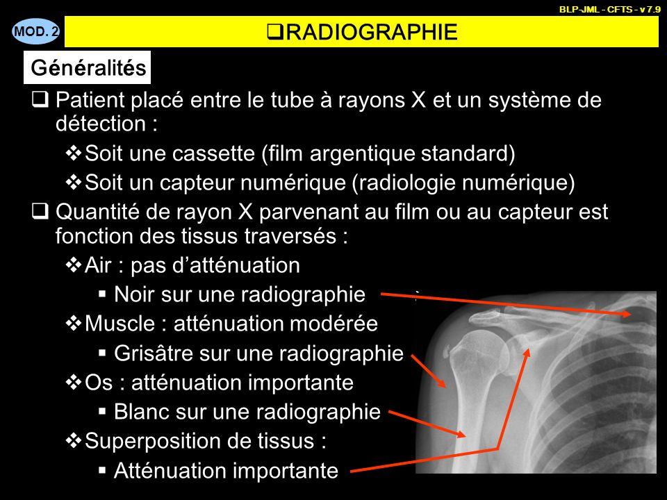Patient placé entre le tube à rayons X et un système de détection :