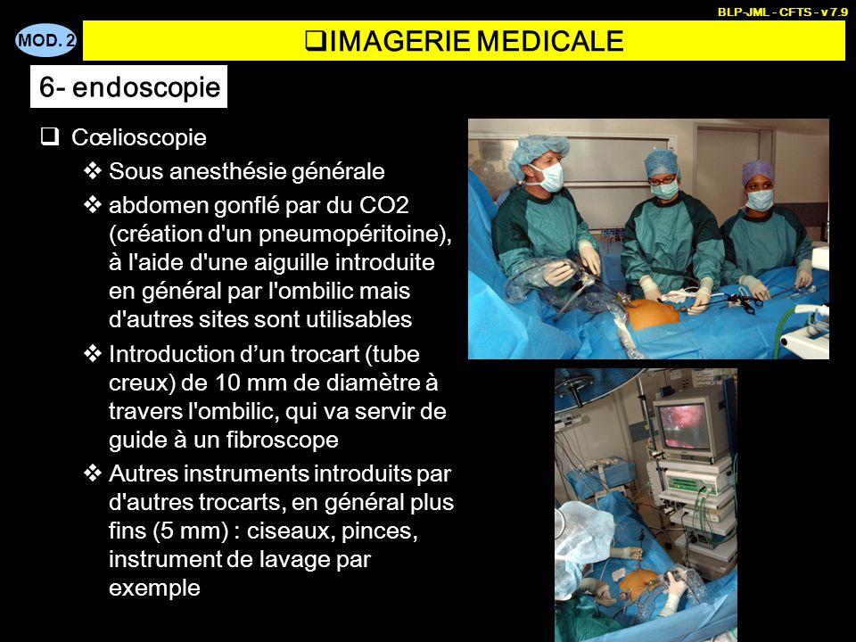 IMAGERIE MEDICALE 6- endoscopie Cœlioscopie Sous anesthésie générale