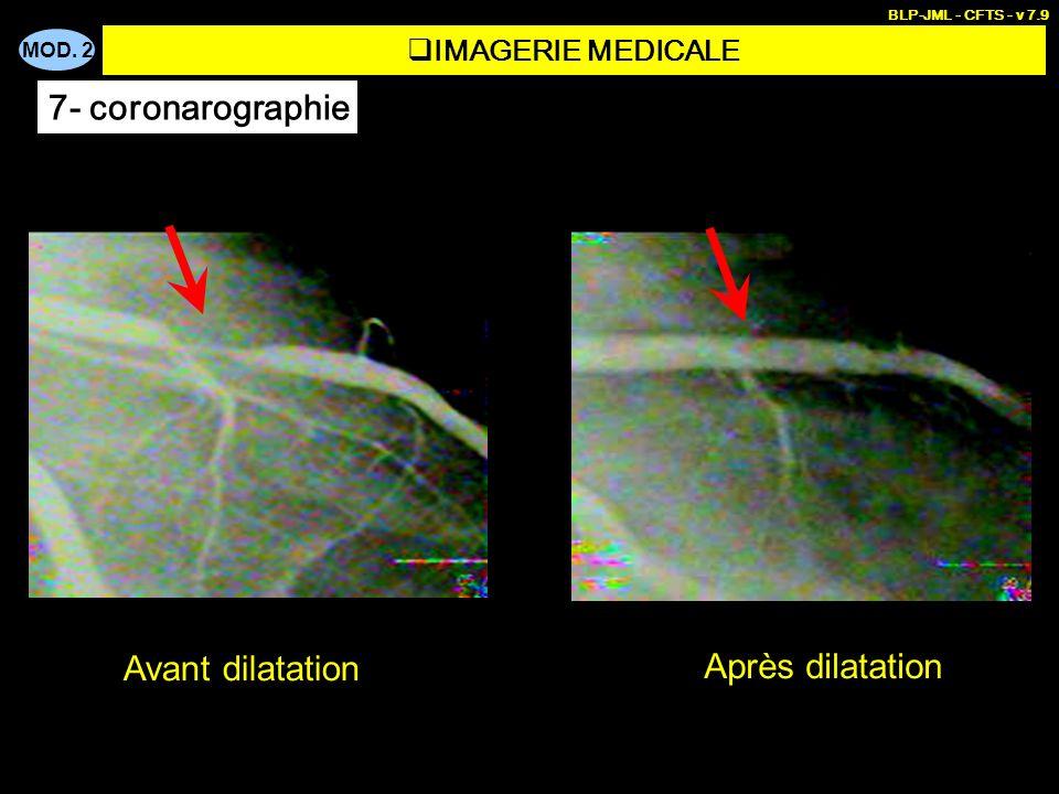 7- coronarographie Avant dilatation Après dilatation IMAGERIE MEDICALE