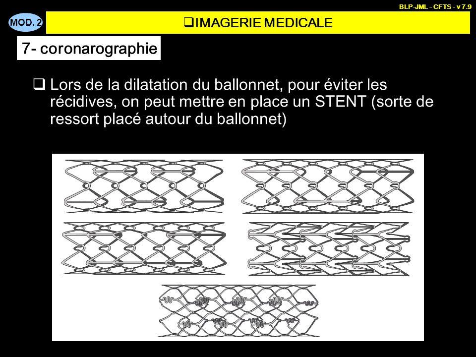 BLP-JML - CFTS - v 7.9IMAGERIE MEDICALE. 7- coronarographie.