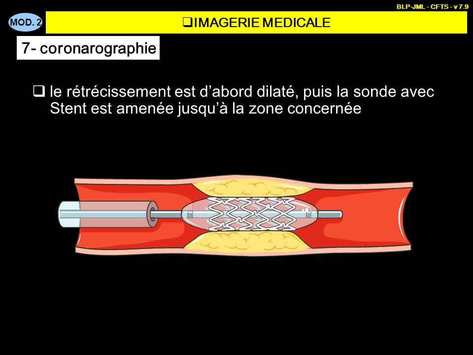 BLP-JML - CFTS - v 7.9 IMAGERIE MEDICALE. 7- coronarographie.