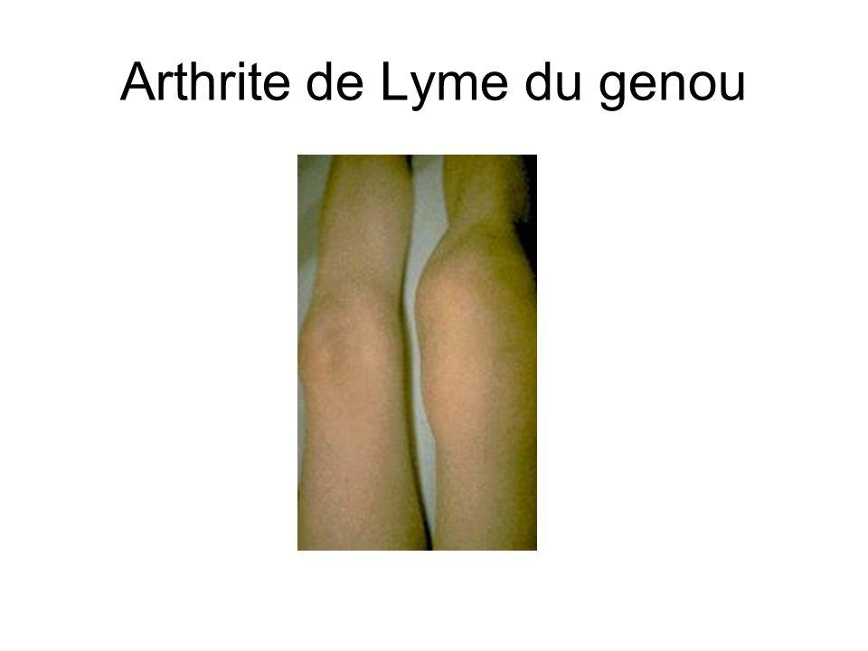 Arthrite de Lyme du genou