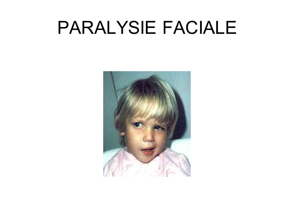 PARALYSIE FACIALE