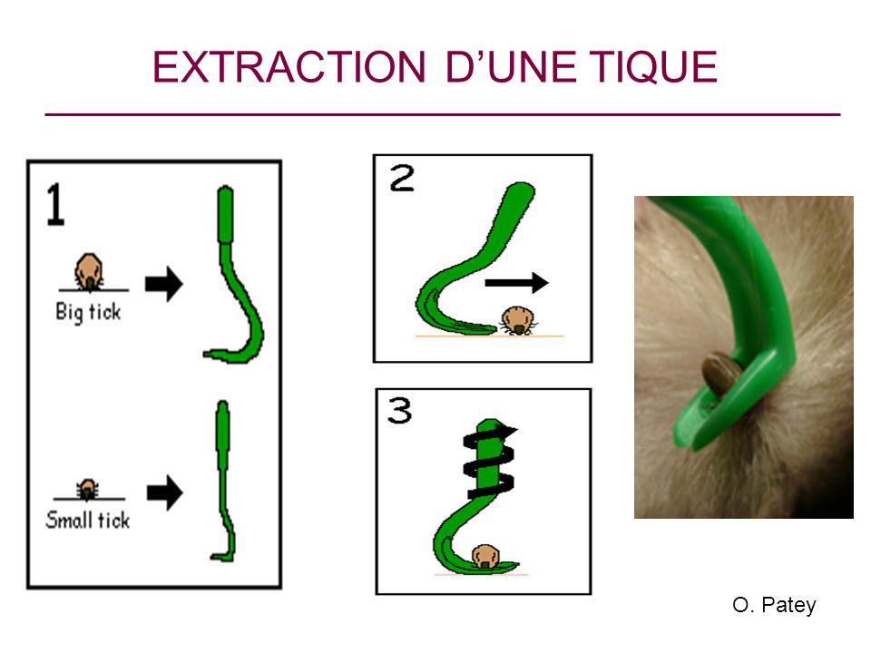EXTRACTION D'UNE TIQUE